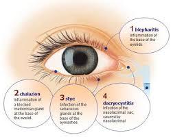 eyelash pain infected eyelid treatment