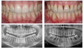 http://www.periodontalhealth.com/
