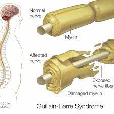Guillain Barré Syndrom GBS Germany