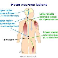 upper motor neuron lesions