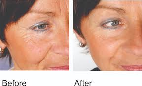 red light facial therapy reviews