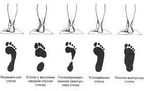Реферат Осанка и плоскостопие ru Взрослые граница зоны анемии расположена в середине средней трети перпендикуляра либо на границе средней и наружной трети перпендикуляра pq
