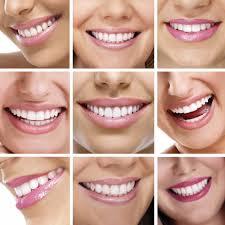 Aesthetic Smiles By Design Smile Design Aesthetic Advantage Aesthetic Dental
