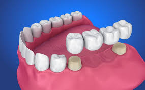 Different Types of Dental Crowns & Bridges - Magnolia Dental