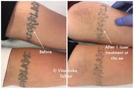 удаление татуировки лазером Tallinn Vitaclinika