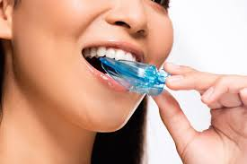 Use of Mouthguard to Avoid Grinding Your Teeth