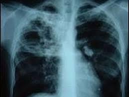 Tuberculoza, o boală infecto-contagioasă | Jurnal Spiritual