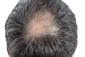 頭頂部の薄毛いつの間にかハゲる原因は取り組むべき対策はコレヘア