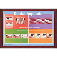 >wall art top 10 amazing images dental wall art dental wall art and  implants dental wall art framed wall art to office decor print wall art gallery hang posters