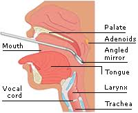 laryngoscopy. viewing the larynx laryngoscopy