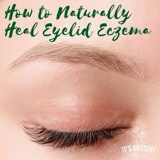 eyelid eczema