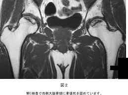 股関節 壊死 難病