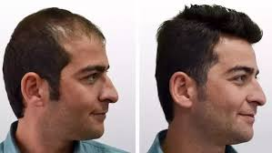 the report for hair transplant market is exclusory available at marketreseacrhfuture with latest advancement report covered the deled information