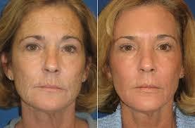 Laser Skin Rejuvenation Waldman Schantz Plastic Surgery Center