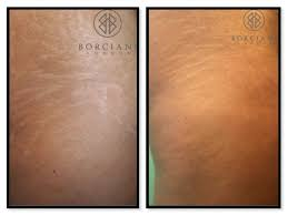 body to create collagen and elastin which repair the tears in dermal layer as how cover
