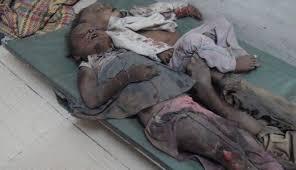 Image result for آل سعود باز هم بر سر مردم یمن بمب خوشهای ریخت