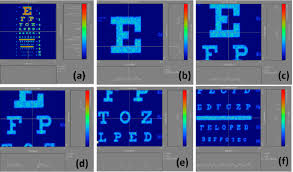 Snellen Eye Chart Normal Results Imaging Results Of Different Regions Selected In The Snellen