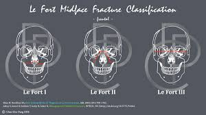Le Fort Fracture Craniofacial Fracture Injuries Le Fort Classification Perio