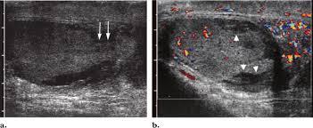 testicular rupture symptoms. download testicular rupture symptoms