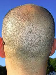 Male Pattern Baldness Haircuts Beauteous Male Hair Loss All You Need To Know
