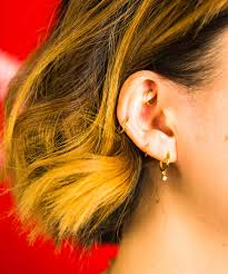 What Is A Keloid Piercing Hypertrophic Scars Explained