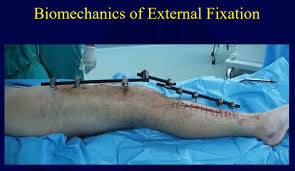 external fixator biomechanics of external fixation orthopaedicprinciples com