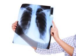 Sohati - ما هي أساليب علاج تليف الرئة؟