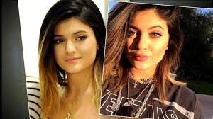 kylie jenner turned her lip obsession