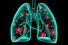 what is coronavirus pneumonia u s news