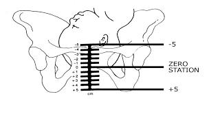 Fetal Head Engagement Chart 37 Weeks Pregnant Pregnancy Symptoms Pregnancy Symptoms