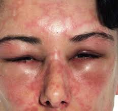 Hives and angioedema | Singapore| PDF | PPT| Case Reports | Symptoms ...