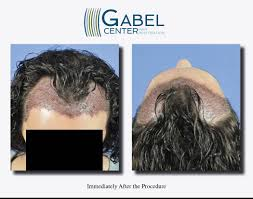 Watch A Patients Real Time Growth After 3439 Grafts Gabel