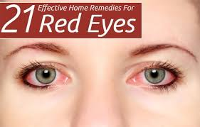 How To Get Rid Of Red Eyes | Beauty | Pinterest | Remedies, Home ...