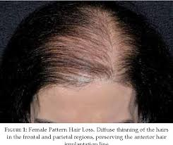 Female Pattern Hair Loss Simple Figure 48 From Female Pattern Hair Loss A Clinical And
