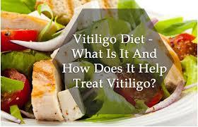 Role Of Diet In Vitiligo Foods To Eat Avoid In Vitiligo