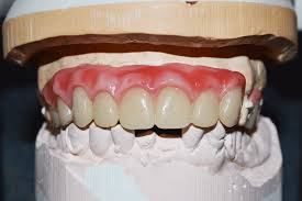 Teeth Setting Ultaire Akp Rpds Give A Patient Her Smile Back Solvay