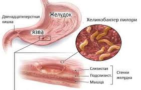 Инфекция helicobacter pylori где обитает хеликобактер пилори Язвенная болезнь желудка и двенадцатиперстной кишки Диагностика язвенной болезни Лечение язвенной болезни Питание при язвенной болезни