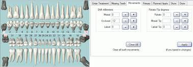 Tooth Chart 1 32 Open Dental Software Tooth Movements