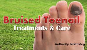 bruised toenail and bruise under toenail treatments and prevention