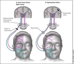 of nerve fibres a lmn lesion results in paralysis or weakness of both upper and lower parts of the face whereas an upper motor neuron umn
