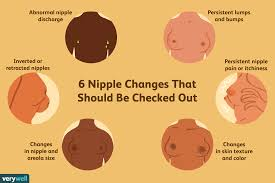 Why Are My Areolas So Light Nipple And Areolar Changes Whats Normal Whats Not