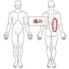 背中 の 痛み 右側