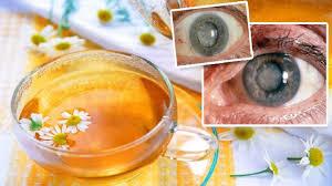 Resultado de imagen para Remedios naturales para la retinopatía