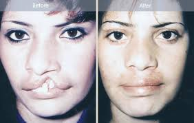 cleft lip repair cleft lip before and after nyc cleft lip repair results