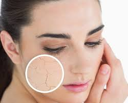 dry skin it is very irritating and spoils your looks this is a mon problem that most people face at some point in time