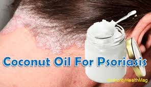 does coconut oil help psoriasis on the scalp