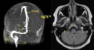 Understanding idiopathic intracranial hypertension  mechanisms     Additionally  treatment should be directed to the underlying etiology of  increased ICP  For example  surgery may be indicated for resection of  tumors and