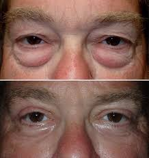 baggy eye surgery