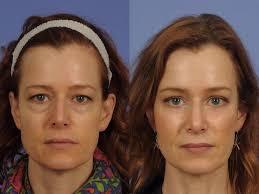 Resultado de imagem para lifting facial free