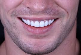 إبتسامة هوليود لتجميل الأسنان بصفة دائمة
